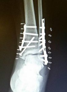 My new titanium ankle!